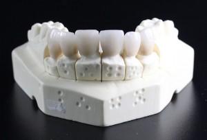 proteze dentare sector 2